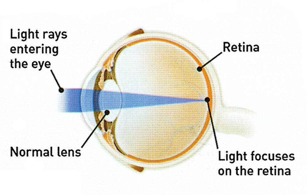 Medical articles peregrine eye and laser institute during cataract surgery tiny instruments are used to break apart and remove the cloudy lens from the eye ccuart Gallery